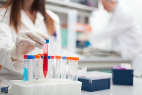 Biogen Reports Positive Results on Alzheimer's Trial, Shares Soar